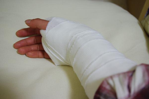 右手首骨折